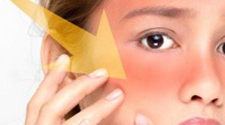 Những tác hại của nắng gắt mùa hè  đối với làn da